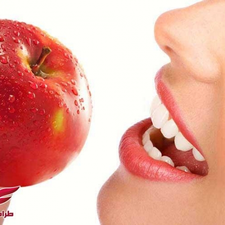 Teeth and apples www.modernera.ir  450x450 - دندان و سیب